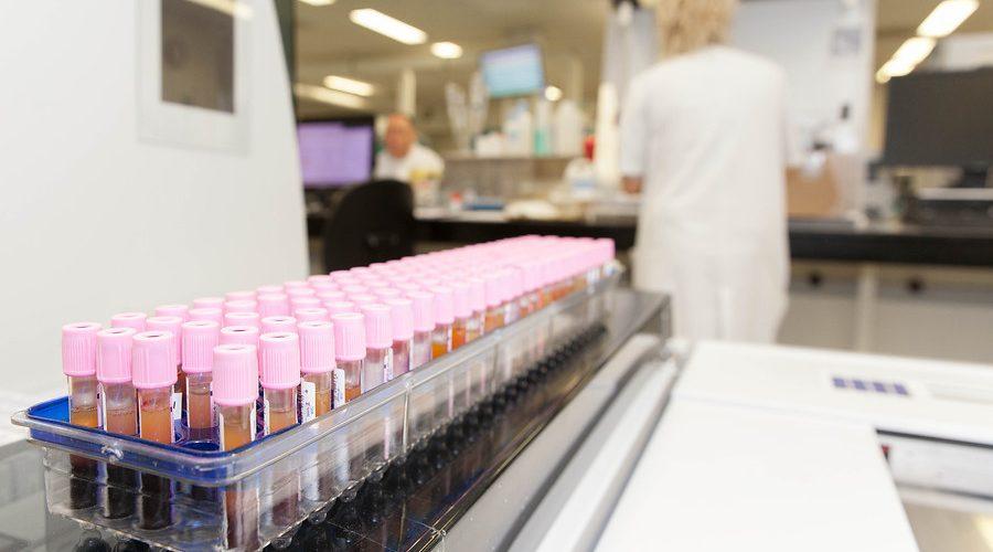 DPYD-genotypering, buizen bloed, EDTA, rek buizen, hematologie straat